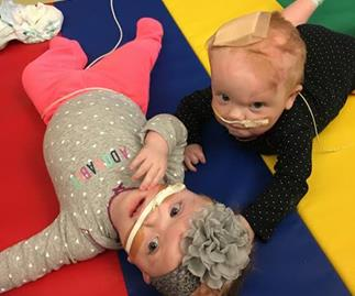 Australian baby twins conjoined at the head survive their separation surgery