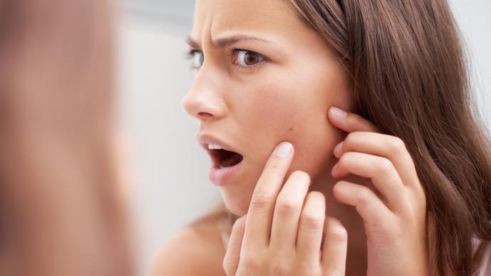 Squeeze pimple