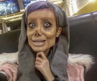 Iranian teenager has 50 surgeries to 'look like Angelina Jolie'