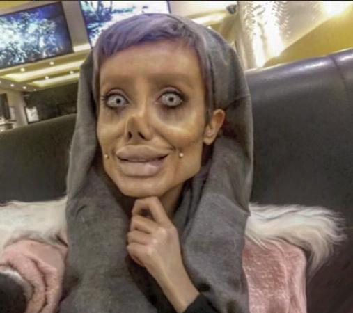 Iranian teenager has 50 surgeries to 'look like Angelina Jolie'