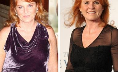 Weight Watchers is axing before and after photos