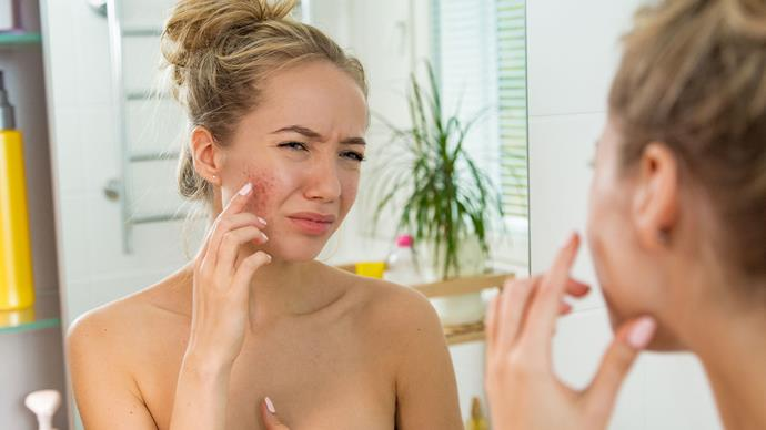 How to deal with red and inflamed skin
