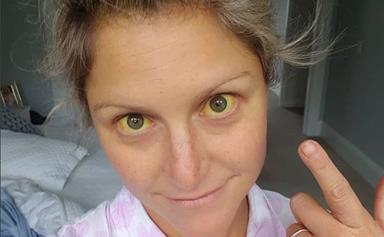 Toni Street reveals her alarming new health battle
