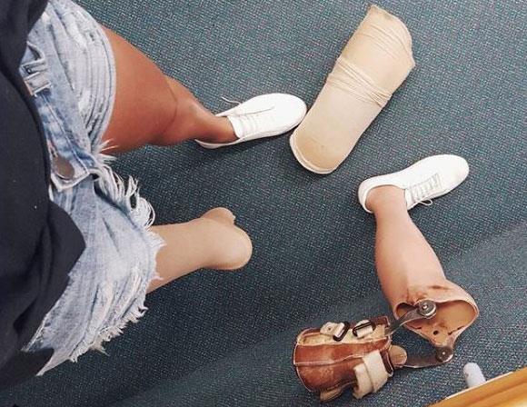 Jess's prosthetic leg removed.