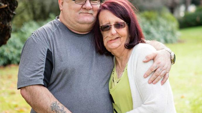 Southland grandmother Christine Brown's revolutionary and life-changing facial surgery