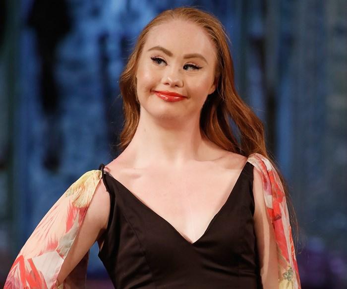Madeline Stuart, international model with Down syndrome