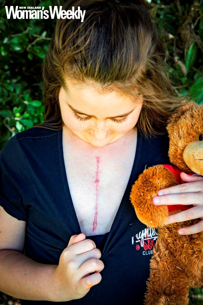 Cherize likes her scar because it represents her bravery.