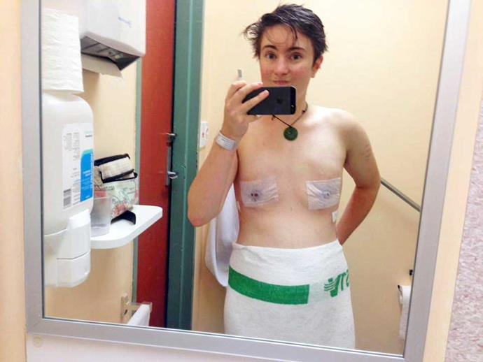 After breast removal surgery.