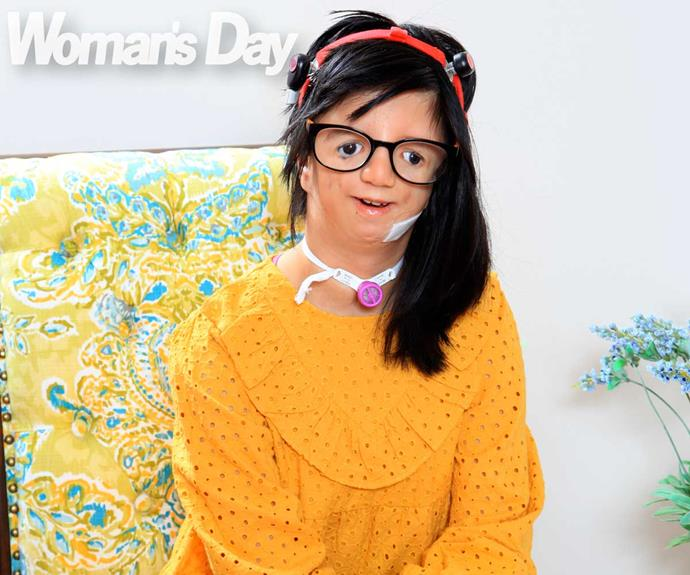 Brave 12-year-old Liwen Miao refuses to let Treacher Collins Syndrome hold her back