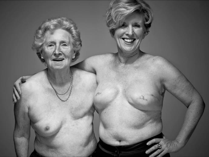 Gwendoline and her mother Bette have both undergone mastectomies and bravely posed topless for breast cancer support.