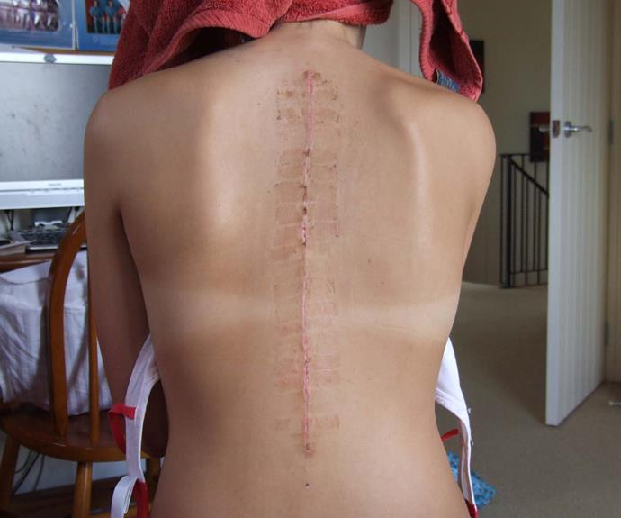Vicky's scholiosis scar. I*mage: Supplied*