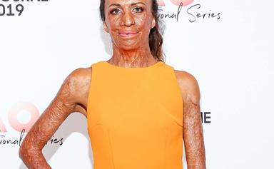 Burns survivor Turia Pitt reveals Australian bush fires have given her nightmares