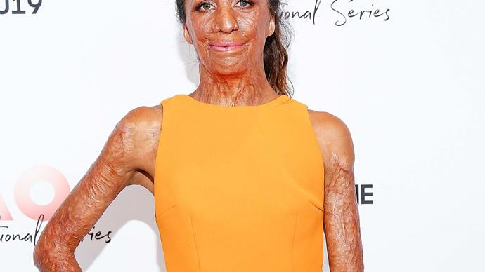 'It's exhausting': Turia Pitt shares emotional message about the reality of caring for a newborn