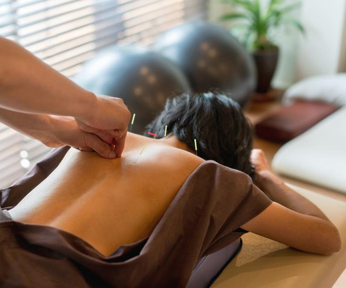 Woman getting acupuncture on back