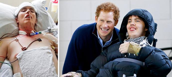Ben in the ICU after the accident (left) and meeting Prince Harry (right).