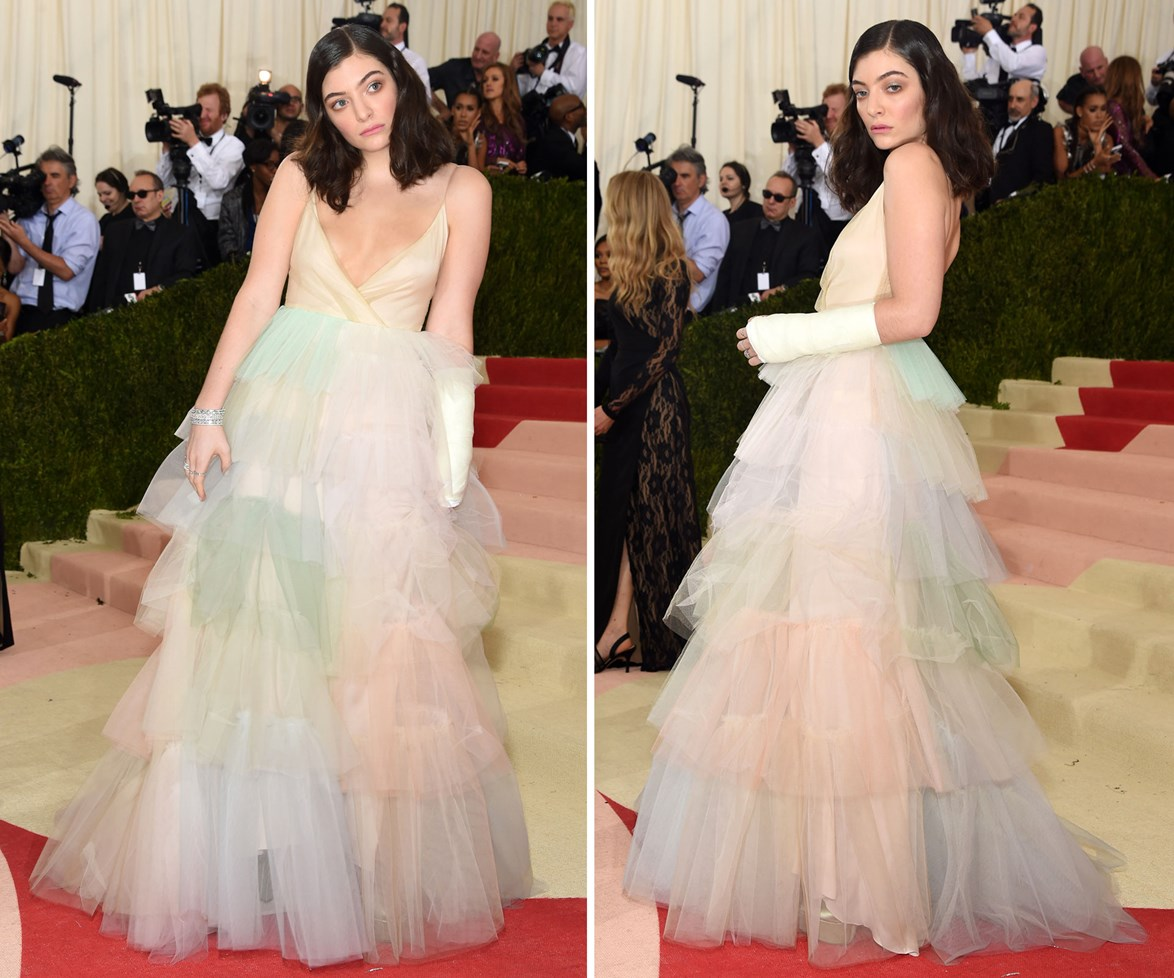 """[**May 4, 2016**](http://www.womansday.co.nz/celebrity/new-zealand-celebrities/lorde-gets-cast-signed-by-the-stars-at-met-gala-4628 target=""""_blank"""") Lorde drew puzzled looks when she appeared on the red carpet at the Met gala with a cast on her arm, but the star still looked as regal as ever in a pastel-coloured Valentino creation."""
