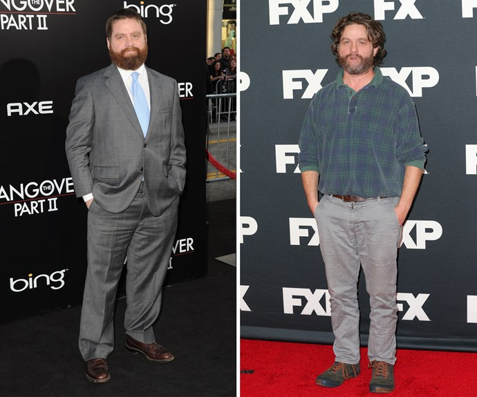"""Zach Galifianakis has been steadily dropping the pounds since his debut as the loveable oddball in *The Hangover*. The star hasn't revealed too much about how he achieved his amazing slimdown, but in an interview with [WGN]( http://wgntv.com/2014/10/15/zach-galifianakis-stunning-weight-loss/