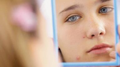 Acne ads cause heartache