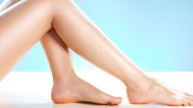 Treating varicose veins