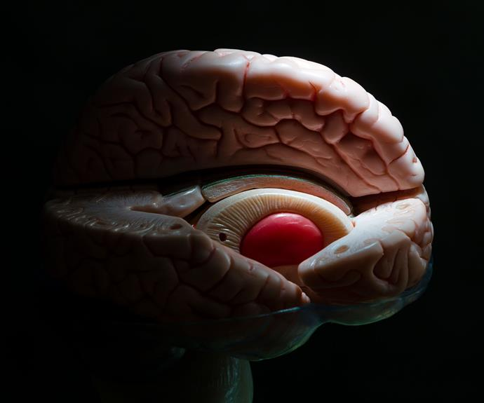 A model showing the basal ganglia, deep structures of the brain primarily affected in Huntington's disease.