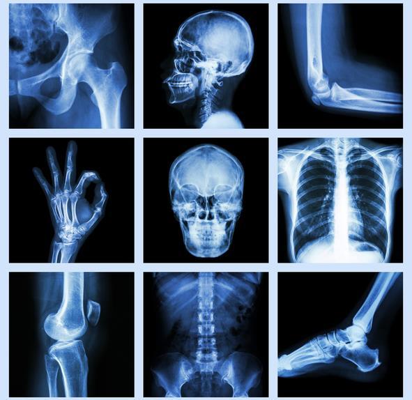 Human X Ray