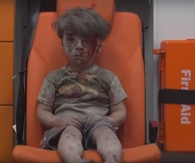 Tragic images emerge of young Syrian boy injured in bomb blast