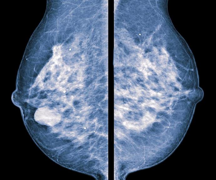 Both breast tissue and cancer appear white on a mammogram