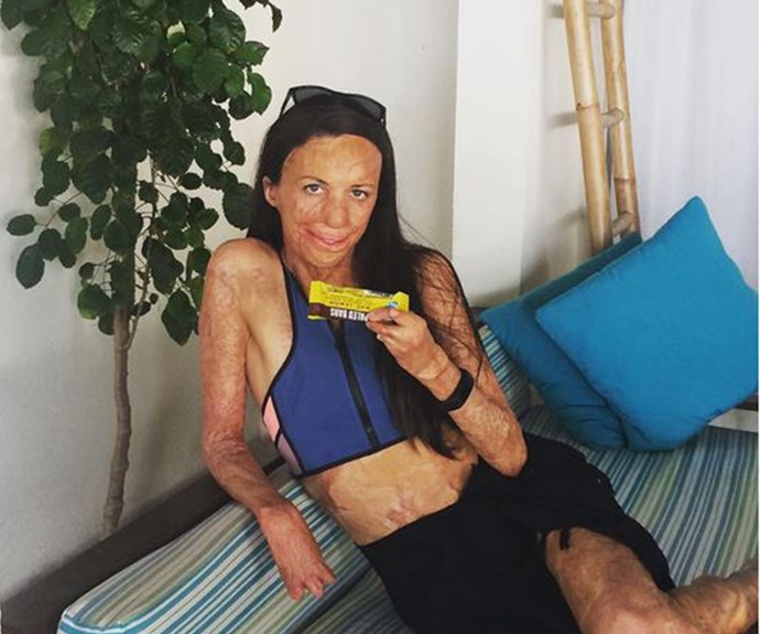 """I know it's hard to say I'm lucky, but I am lucky cause the situation could have been a lot worse,"" she told *60 Minutes* in 2012 when reflecting on the bush fire that almost took her life as she ran a marathon in remote Western Australia."