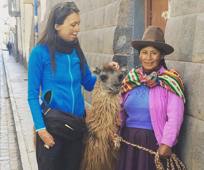 Turia hasn't let anything stop her quest for adventure and discovery and [welcomed her 28th birthday](http://www.nowtolove.com.au/celebrity/australian-celebrities/turia-pitt-turns-28-13205) by climbing Machu Picchu.
