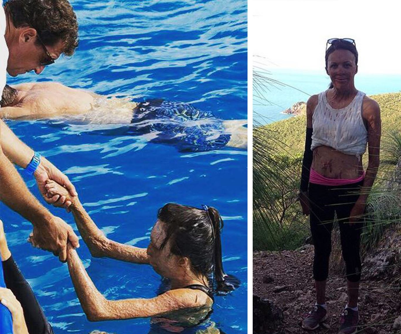 In pictures: Turia Pitt and Michael Hoskin's love story:She truly is miraculous, achieving things that most people couldn't dream off of doing!