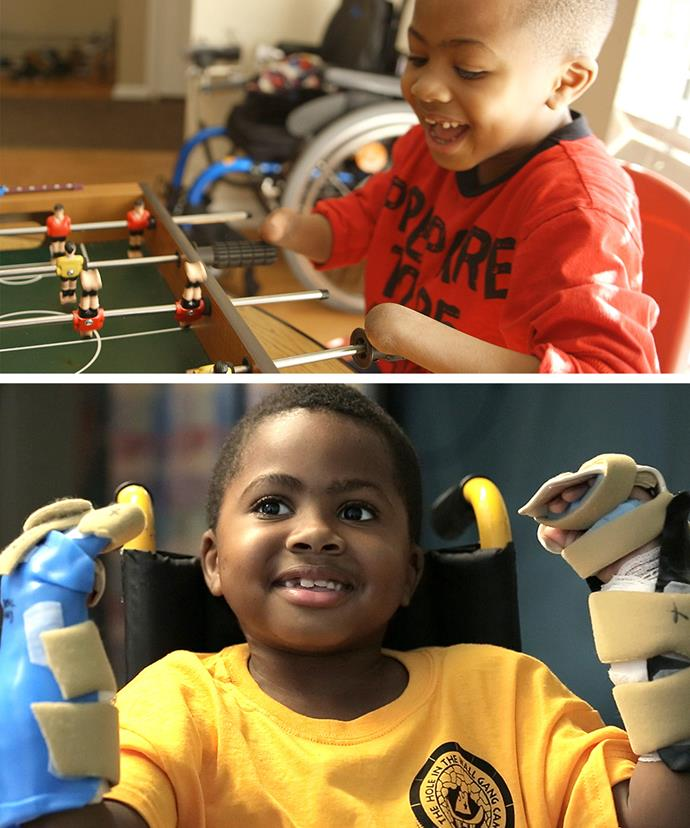 Zion was just two-years-old when he lost his hands and feet as result of a deadly infection. Zion was incredibly brave to embark on such a  huge surgery.