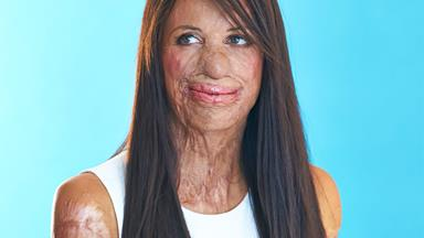 In pictures: Turia Pitt's most inspirational moments