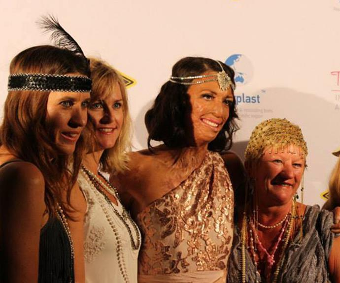 In April, she threw a fundraising [charity gala for Interplast](http://www.womansday.com.au/celebrity/australian-celebrities/turia-pitt-throws-a-great-gatsby-themed-fundraiser-12216) and raised much-needed proceeds for the organisation.