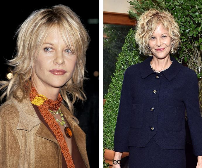 Then and now: The 54-year-old seems to be just as fresh-faced as she was in her glory days. [**Dr James Southwell-Keely**](http://www.drjsk.com.au/) believes the *Sleepless in Seattle* actress has had a facelift, upper blepharoplasty (eyelid reconstruction) and lip fillers.
