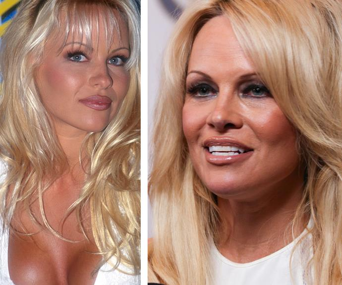 With her angelic features Pamela Anderson (on the left in 1994 and right in 2015) became an overnight sensation in the Nineties. But these days, her raised cheekbones, plump pout and smooth forehead have many wondering if she's had a little help to maintain her timeless beauty.