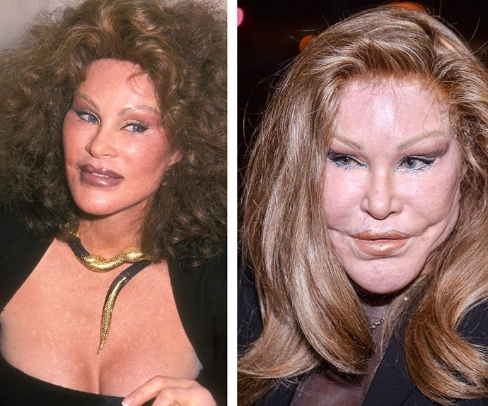 It's believed New York socialite Jocelyn Wildenstein (pictured in 2000 on the left and 2015 on the right), aka Cat Woman, has spent around $4 million to achieve her feline features.