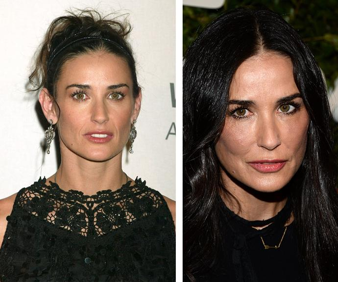 "Demi Moore is just smooth and line-free now (R) as she was 12 years ago (L). ""I have had something done but it's not on my face,"" she told Elle UK. ""Maybe one day I'll go under the knife,"" the 52-year-old hinted."