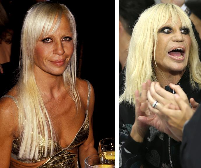 Experts claim 60-year-old Italian fashion powerhouse Donatella Versace, pictured in 1994 on the left and 2015 on the right, has undergone a nose job, lip fillers, chin implants and Botox.