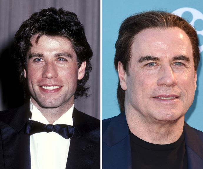 "John Travolta, is that you? In 1982 (L) John was Hollywood's biggest heartthrob, nowadays, aged 61, the *Grease* star's face is very wrinkle-free for a man his age. According to plastic surgeon [Dr James Southwell-Kelly](http://www.drjsk.com.au), the actor's raised hairline indicates a ""micro-follicular hair transplantation to conceal a receding hairline or a frontal eyebrow lift."""