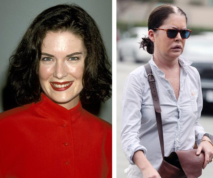 During the Nineties (L) Lara Flynn Boyle was one of the most sought after actresses. These days the 45-year-old is unrecognisable with notably puffier lips.