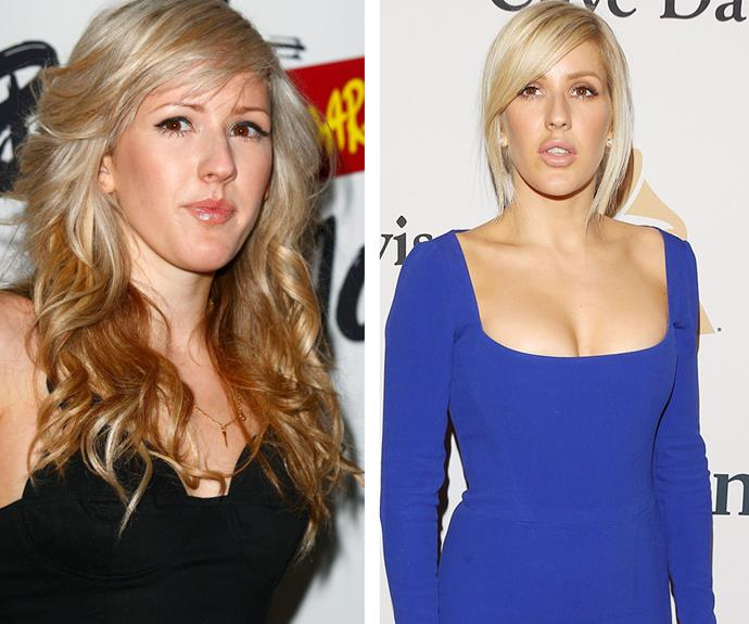 When Ellie Goulding stepped out at a pre-Grammys bash at the in LA earlier this week (R) her plumped pout and perfectly smooth skin prompted fevered surgery speculation. Indeed, the singer looks markedly different compared to 2010 (L).