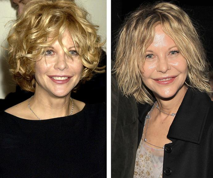 Meg Ryan is frozen in time! This week, the star attended a screening in New York (R) with a tight and taut appearance. Indeed, she's barely aged a day since the 2003 photo (L) was taken.