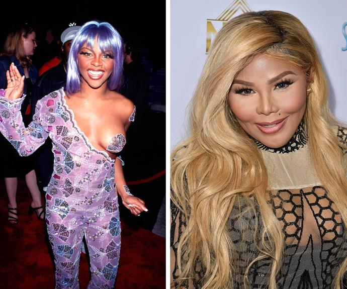 Lil' Kim (pictured in 1999 on the left and March, 2016 on the right) has changed dramatically in recent years. And her latest Instagram post (which you can see in the next slide) has sparked a deluge of fresh surgery speculation.