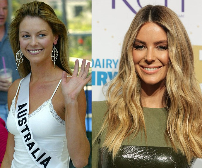 "She rose to fame as the girl next door, who took out the Miss Universe competition in 2004 (L) but fast-forward to the present day and Jennifer Hawkins is ""showing the hallmarks of too much filler,"" says Dr James Southwell-Keely."