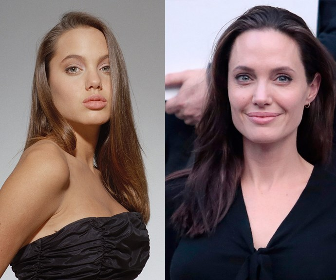 "Angelina Jolie is often praised for keeping it real but our expert believes the mother-of-six has undergone a ""nose job and subtle refinements."""