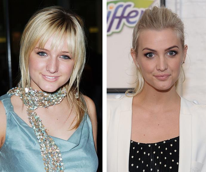 "Ashlee Simpson's nose job ""gives her face a wonderful balance."" While the mother-of-two ""looks to have had a chemical brow lift, Botox and upper lip fillers."""