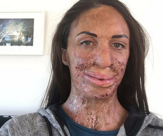 Turia shared this post-laser surgery selfie, bravely talking about her personal insecurities.