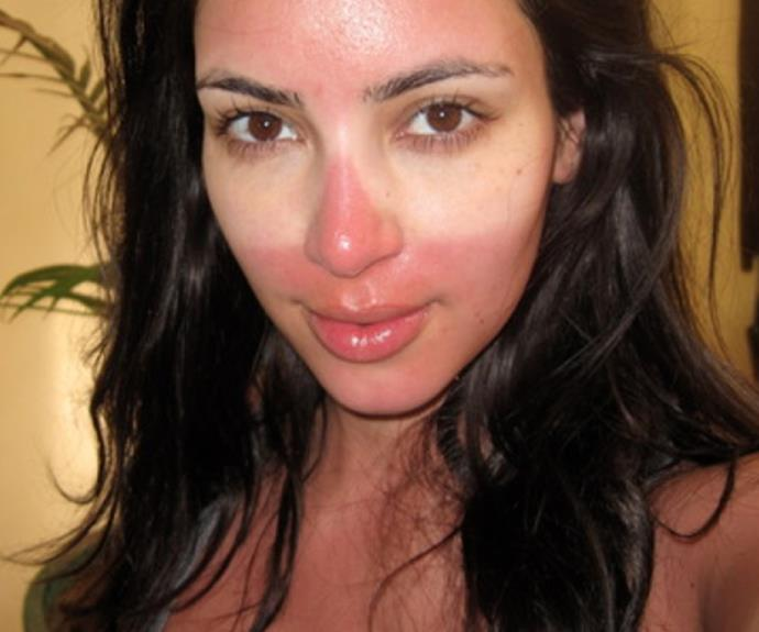 Sun damage starts in as little as ten minutes, and can occur without a sunburn - just ask Kim Kardashian!