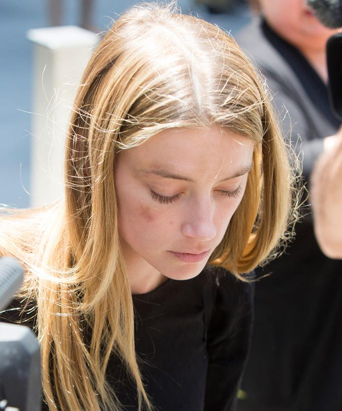 Amber was pictured leaving court with a bruise to her right cheek on May 27.