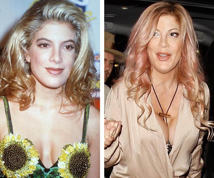 "Tori Spelling, pictured in 1992 on the left, admits she regrets having a boob job. ""If someone had said to me when I was 20 years old, 'by the way, every 10 to 15 years you're going to need to get these suckers replaced' I wouldn't have done it."""